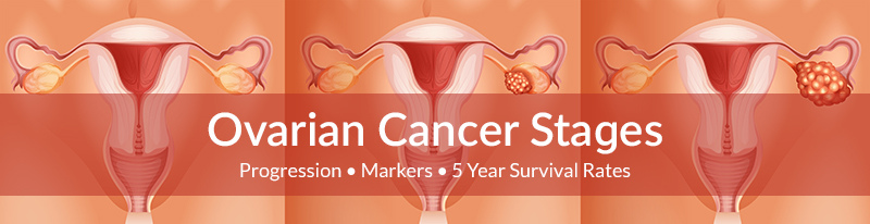 ovarian-cancer-stages