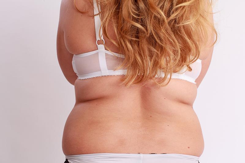back-fat-women