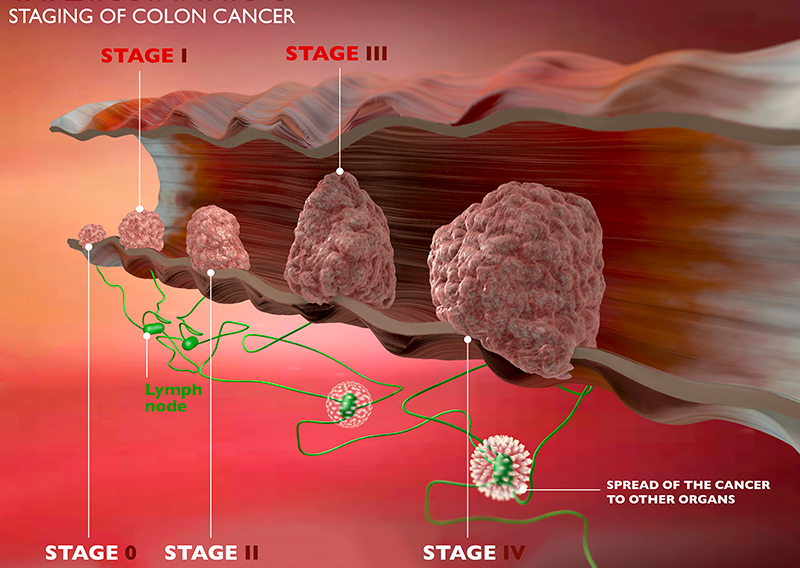 Colon Cancer Stages | Health Warnings